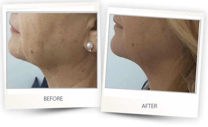 Skin Tightening with BeautiFill by LipoLife
